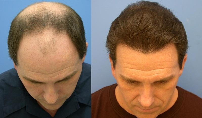 hair-transplant-01